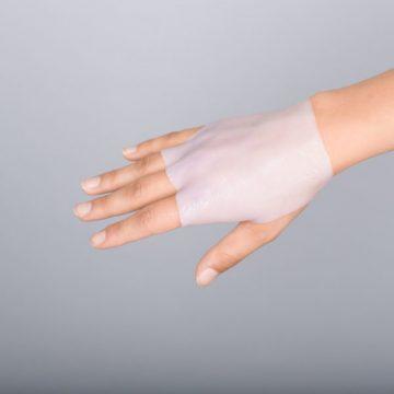 Suprathel applied to burn wound